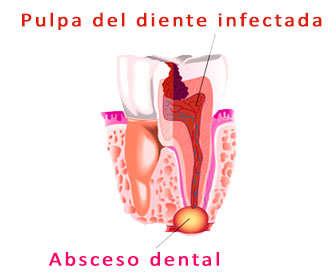 absceso dental sintomas