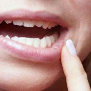 absceso dental tratamiento