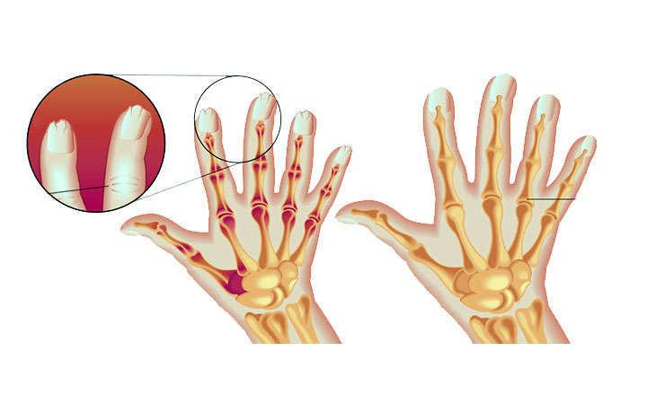 Definición y síntomas de la artritis psoriásica