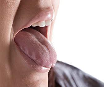 tratamiento natural boca seca