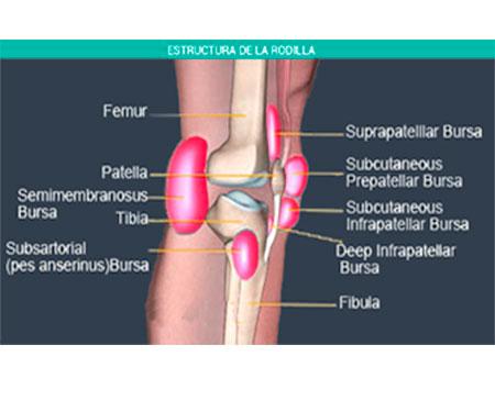 Bursitis de rodilla, que es, cómo tratarla y tiempo de recuperación