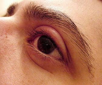 calazio en el ojo