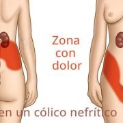 Síntomas del cólico nefrítico