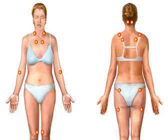 Cómo son los sintomas de polimialgia reumatoide