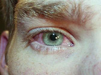 conjuntivitis virica sintomas