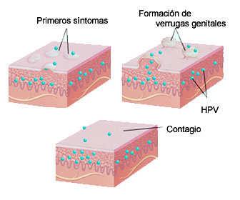 contagio y síntomas vph o virus papiloma humano