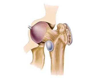 cuanto dura una bursitis de cadera