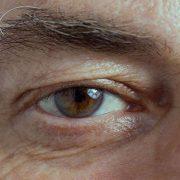 degeneracion macular asociada a la edad