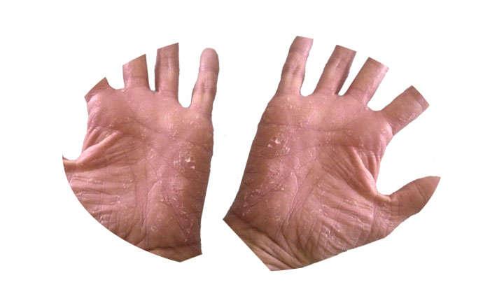 dishidrosis palmar