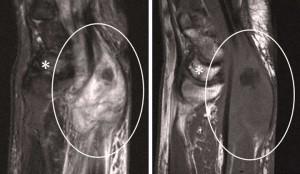 Resosancia magnética de edema óseo