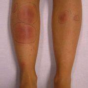 eritema nodoso piernas