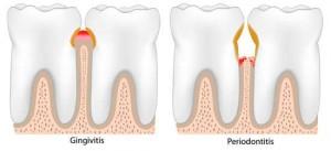 gingivitis y periodontitis