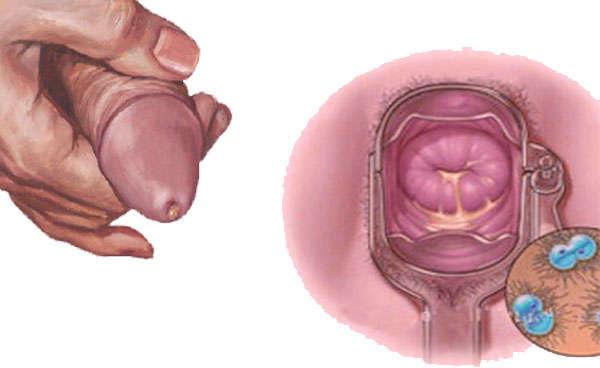 gonorrea sintomas