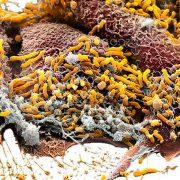 helicobacter pylori causas y consecuencias