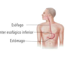 Operación de hernia de hiato o hiatal