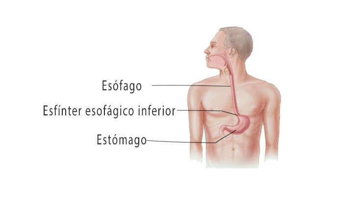 dieta para hernia hiatal en espanol