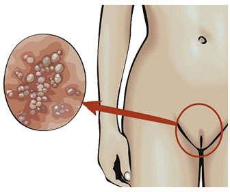 Síntomas del herpes genital femenino