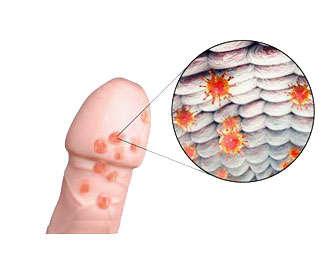 herpes genital masculino, síntomas y signos