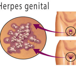 herpes genital sintomas