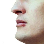 Causas del herpes labial