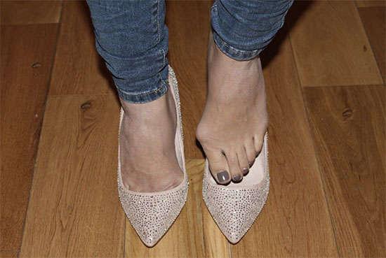 juanetes en los pies sintomas