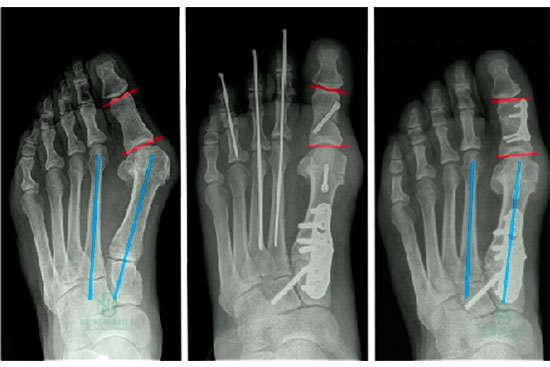 operación de juanetes, vista con radiografía