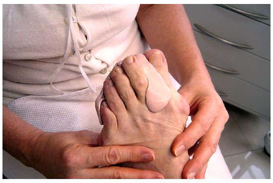 juanetes en los pies tratamiento