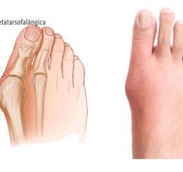 Qué son los juantes en los pies