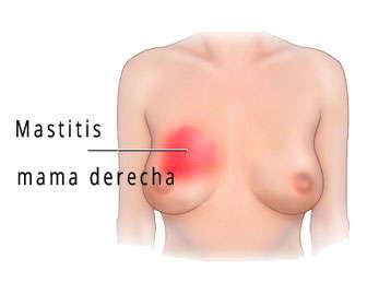 mastitis sintomas en mujeres y hombres