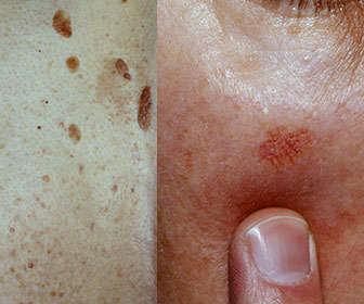 neoplasias seborreica actinica