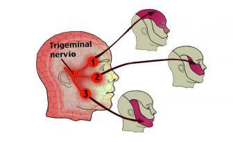 neuralgia trigemino sintomas