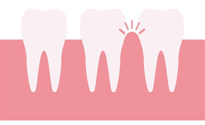 tratamiento periodontal, precios y costes