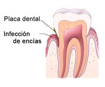 Causas de periodontitis