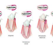 Síntomas de periodontitis inicial, avanzada y crónica