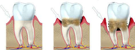 Síntomas de piorrea y periodontitis