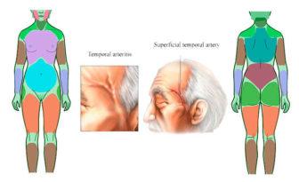 diagnóstico diferencial polimialgia reumática