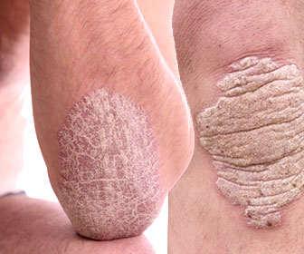 psoriasis escamas y parches en la piel