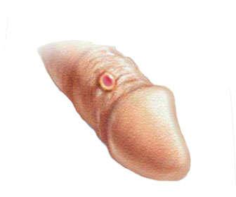 primeros síntomas de sifilis primaria