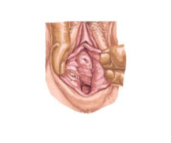 sifilis sintomas en la mujer