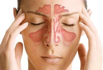 sinusitis dolor de cabeza