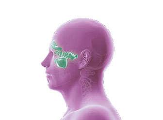 sinusitis etmoidal