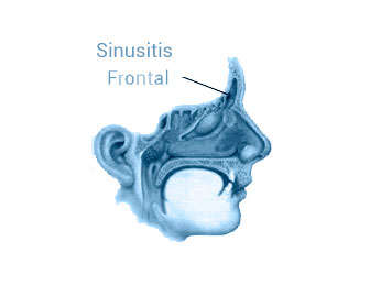 sinusitis frontal
