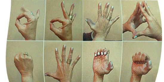 tendinitis en la mano derecha tratamiento