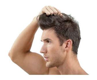 tratamientos capilares para hombres