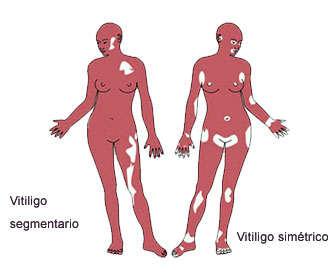 Diferencias del vitiligo segmentario