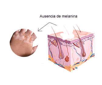 Tratamiento para el vitiligo